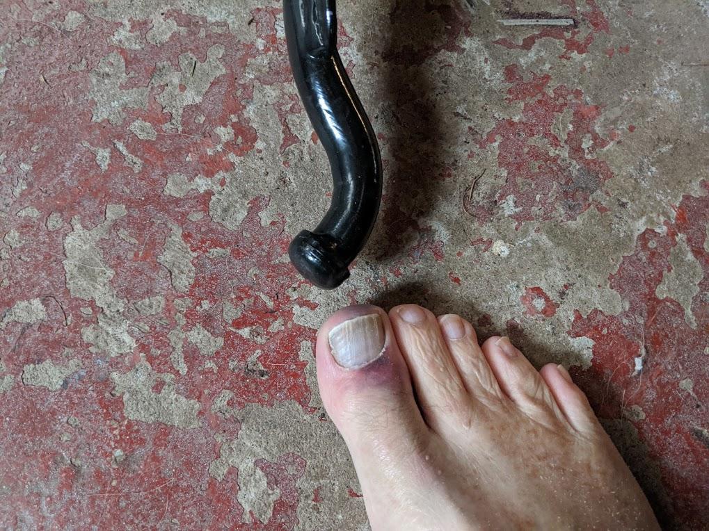 big toe.jpg