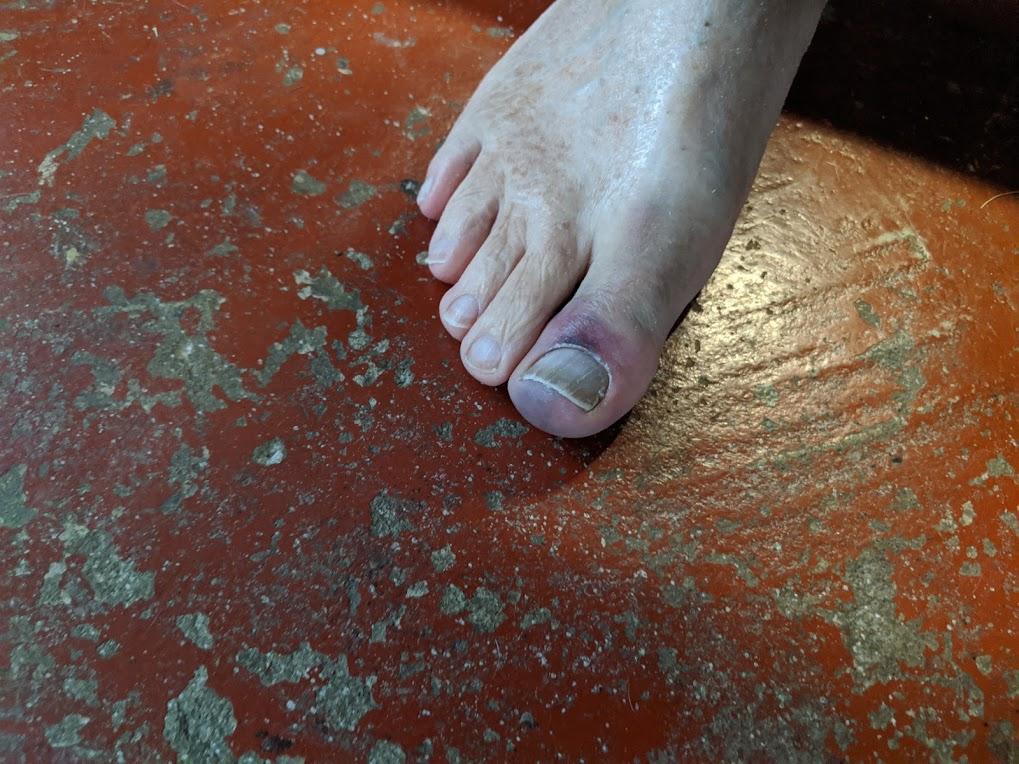 big toe1.jpg